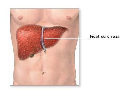 Ciroza hepatică poate fi vindecată ușor, dacă consumi ASTA pe stomacul gol!